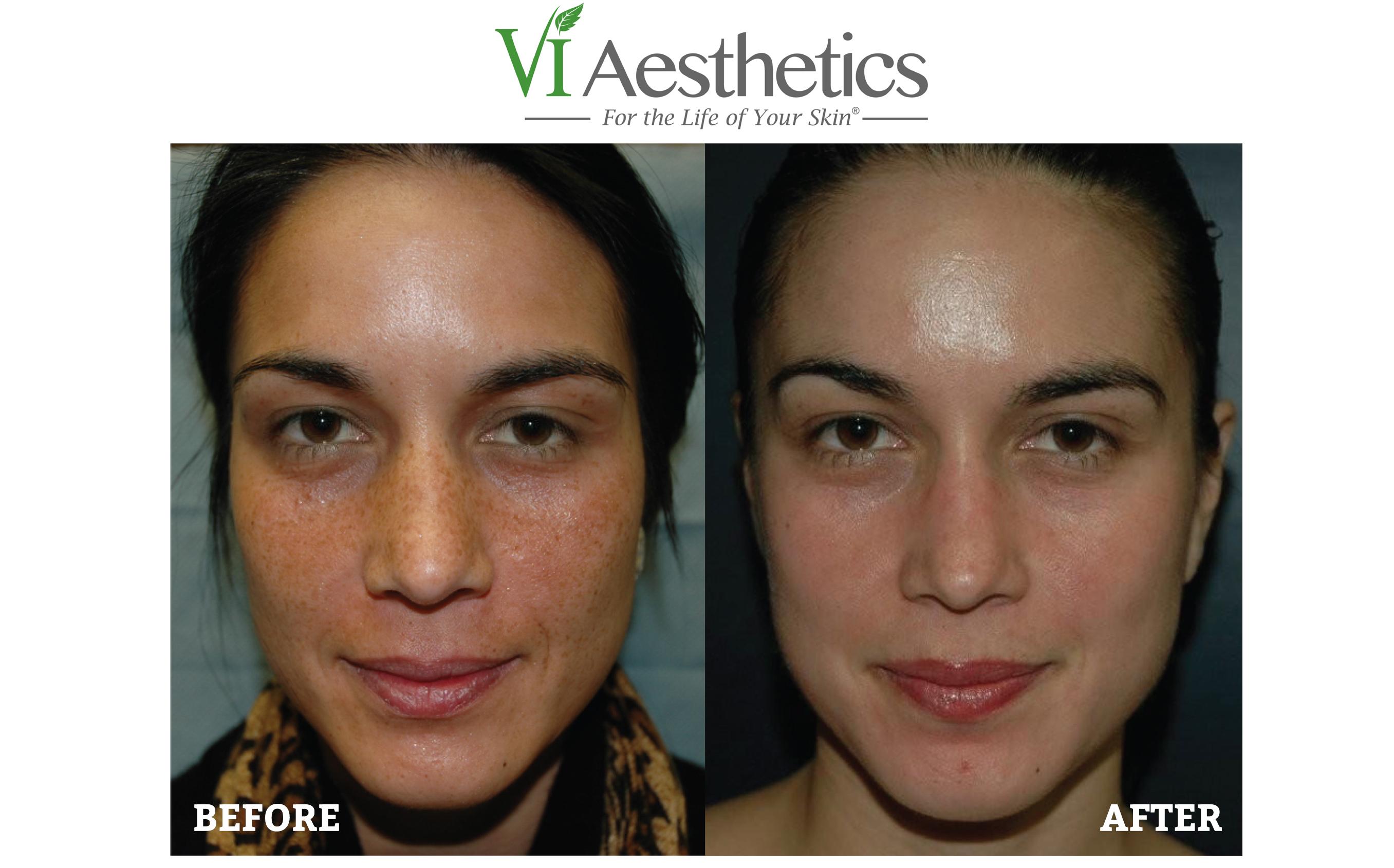 sun-damage-and-pigmentation